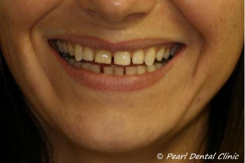 Teeth Gap Before After Close - Upper/lower teeth