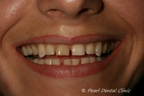 Teeth Gap Before After Close - Top/bottom teeth
