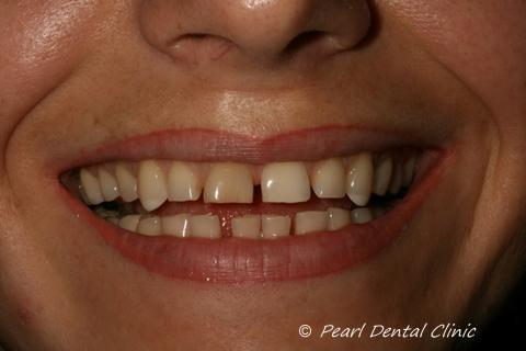 Teeth Gap Before After Close - Top/bottom teeth