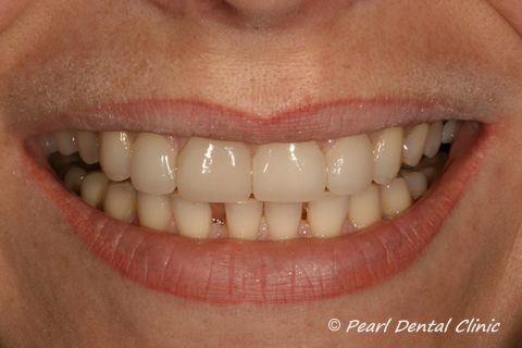 Teeth Gap Before After Close - Top/bottom teeth lumineers