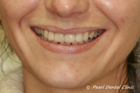 Teeth Gap Before After Close - Upper/lower teeth lumineers