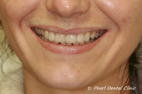 Teeth Gap Before After Close - Upper/lower teeth lumineers