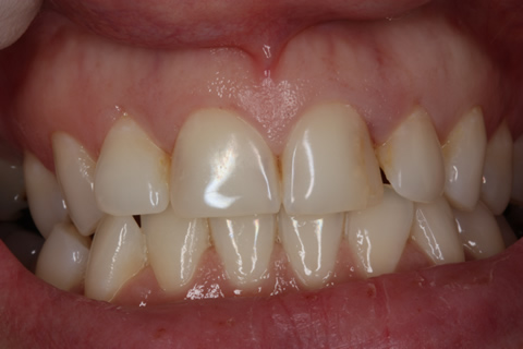 Bad Appearance Teeth Before After - Upper/lower teeth
