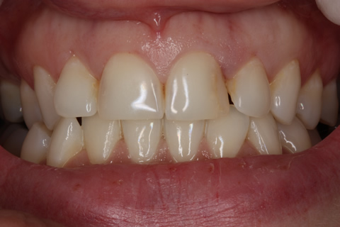 Bad Appearance Teeth Before After - Top/bottom teeth lumineers
