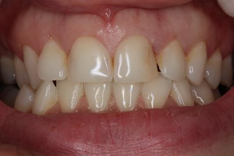 Bad Appearance Teeth Before After - Top/bottom teeth lumineers