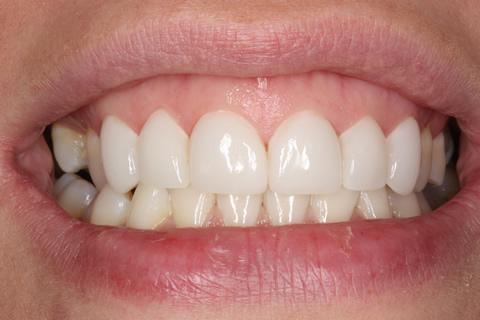 Bad Appearance Teeth Before After - Upper/lower teeth lumineers