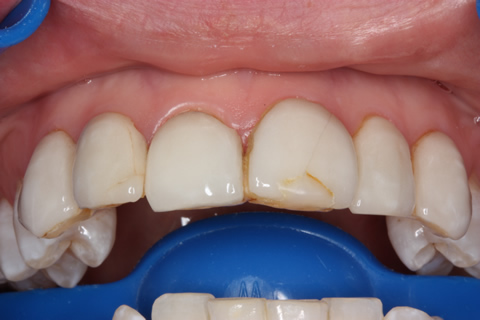 No Tooth Drill Lumineers Before After - Upper teeth