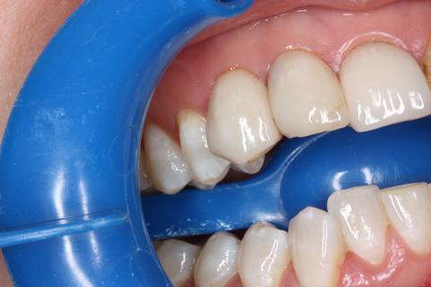 No Tooth Drill Lumineers Before After - Right upper teeth
