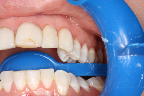 No Tooth Drill Lumineers Before After - Left upper teeth