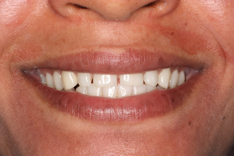 Teeth Gap Before After - Upper teeth