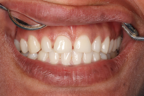 Teeth Gap Before After - Upper arch teeth