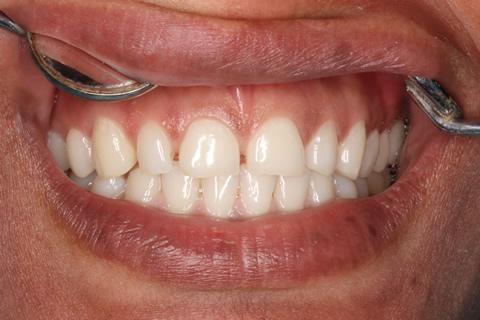 Teeth Gap Before After - Upper arch teeth