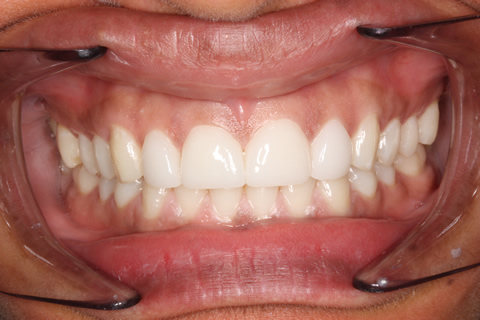 Teeth Gap Before After - Full arch teeth lumineers