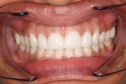 Teeth Gap Before After - Full arch teeth lumineers