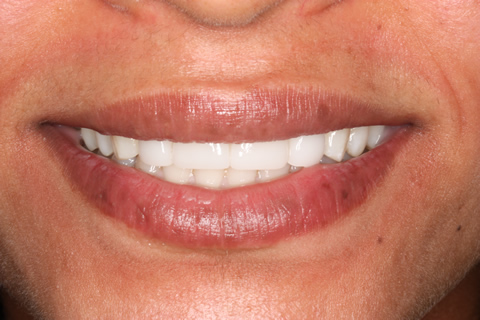 Teeth Gap Before After - Upper teeth lumineers
