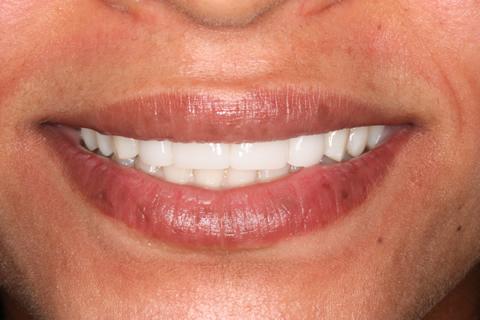 Teeth Gap Before After - Upper teeth lumineers