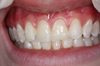 Lumineers Before After - Upper teeth appearance