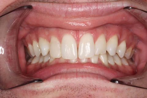 Upper Teeth Gap Before After - Full upper/lower arch teeth