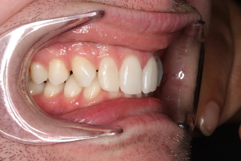 Upper Teeth Gap Before After - Right full upper/lower arch teeth