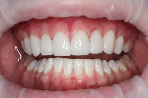 Upper Teeth Gap Before After - Full upper/lower arch teeth lumineers