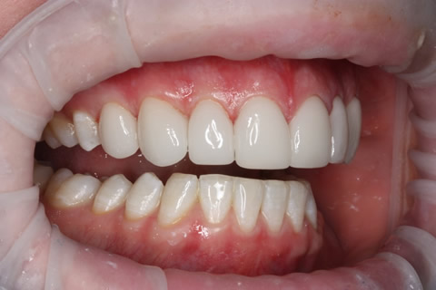 Upper Teeth Gap Before After - Right full upper/lower arch teeth lumineers