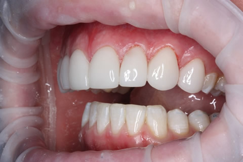 Upper Teeth Gap Before After - Left full upper/lower arch teeth lumineers