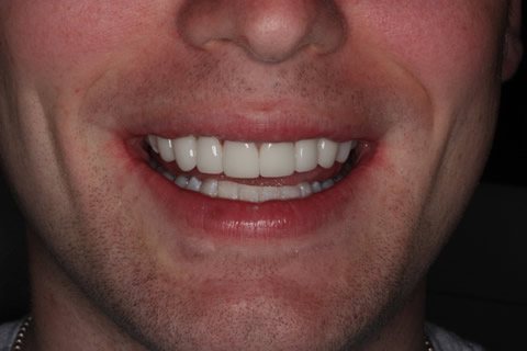 Upper Teeth Gap Before After - Lumineers full smile