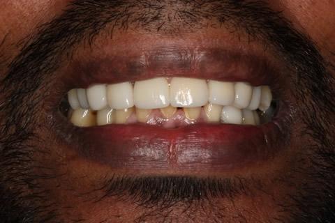 Upper/Lower Teeth Gap Before After - Top/Bottom teeth