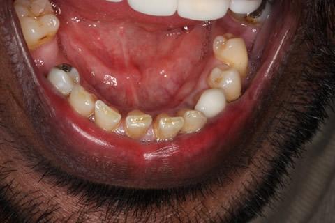 Upper/Lower Teeth Gap Before After - Bottom teeth