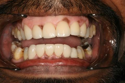 Upper/Lower Teeth Gap Before After - Full arch teeth lumineers