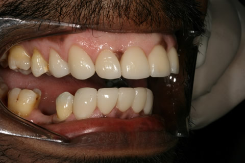 Upper/Lower Teeth Gap Before After - Right full arch teeth lumineers