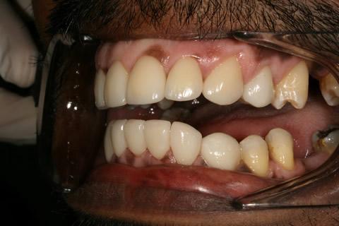 Upper/Lower Teeth Gap Before After - Left full arch teeth lumineers