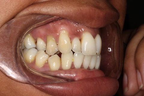 Crowded Teeth Before After - Right upper front teeth