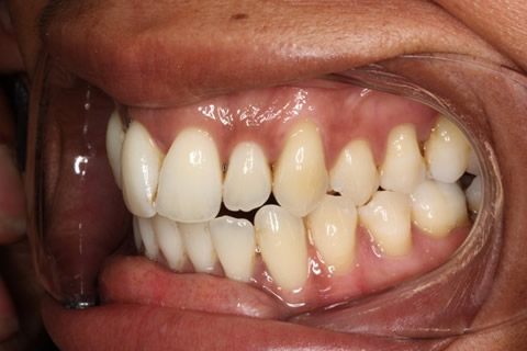 Crowded Teeth Before After - Left upper front teeth