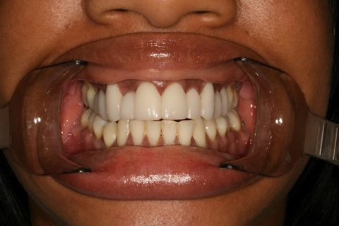 Crowded Teeth Before After - Full upper/lower arch teeth lumineers
