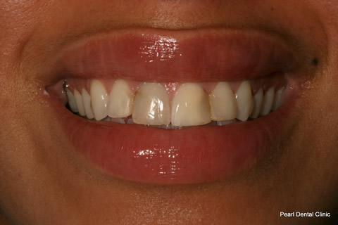 Front Lumineers Before After - Four top teeth