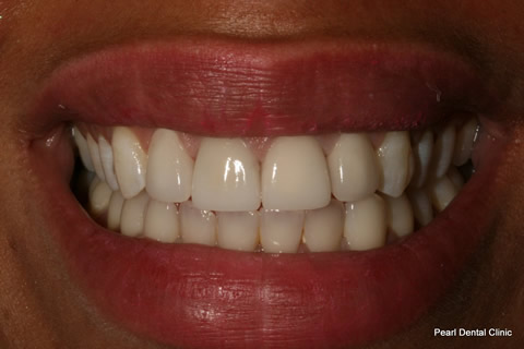 Front Lumineers Before After - Four Upper Teeth Lumineers