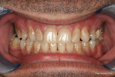 Teeth Lumineers/ Whitening Before After - Full upper/lower arch teeth
