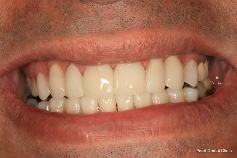 Teeth Lumineers/ Whitening Before After - Upper/lower arch teeth lumineers/ whitened