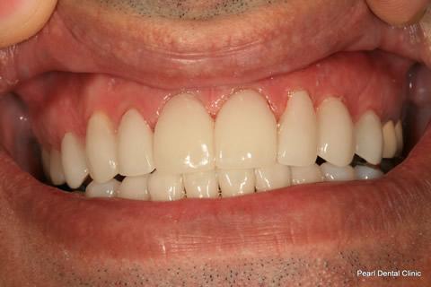 Teeth Lumineers/ Whitening Before After - Top/bottom arch teeth lumineers/ whitened