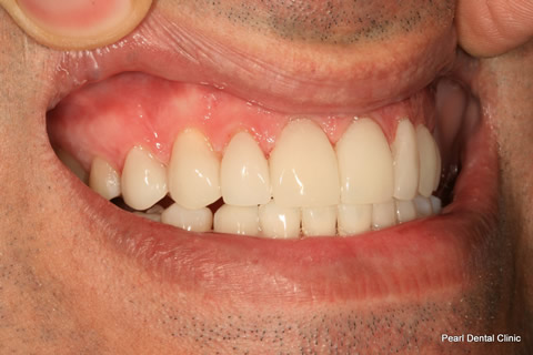 Teeth Lumineers/ Whitening Before After - Upper arch teeth lumineers/ whitened