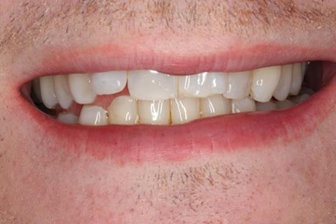 Lumineers Before After - Upper teeth
