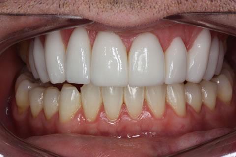 Lumineers Before After - Full arch teeth ten lumineers