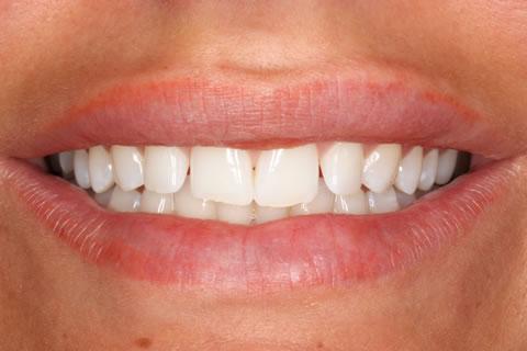 Lumineers Before After - Upper/lower teeth