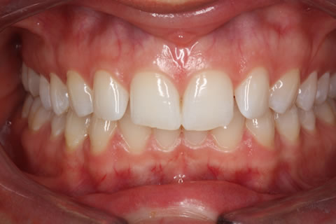 Lumineers Before After - Full upper/lower arch teeth
