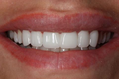 Lumineers Before After - Upper Lumineers Teeth