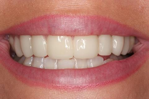 Lumineers Before After - Upper Lumineers Eight Teeth
