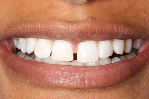 Composite Bonding Before After - Upper teeth gap