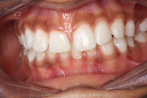 Composite Bonding Before After - Full Upper/Lower arch teeth gap