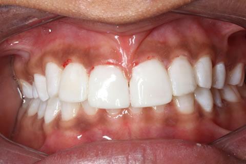 Composite Bonding Before After - Full Upper/Lower arch teeth composite veneer
